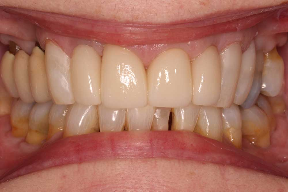NEw smile after porcelain crown fitted at Dentistry @ Markethill