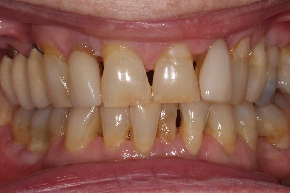 Before replacement of crowns on upper teeth