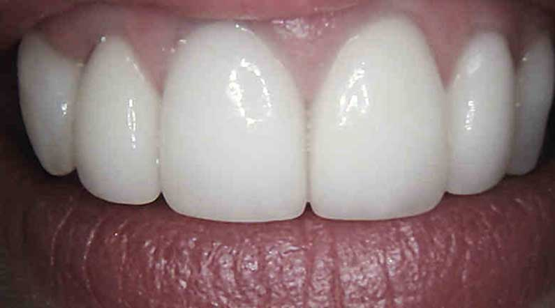 dental crowns after in armagh