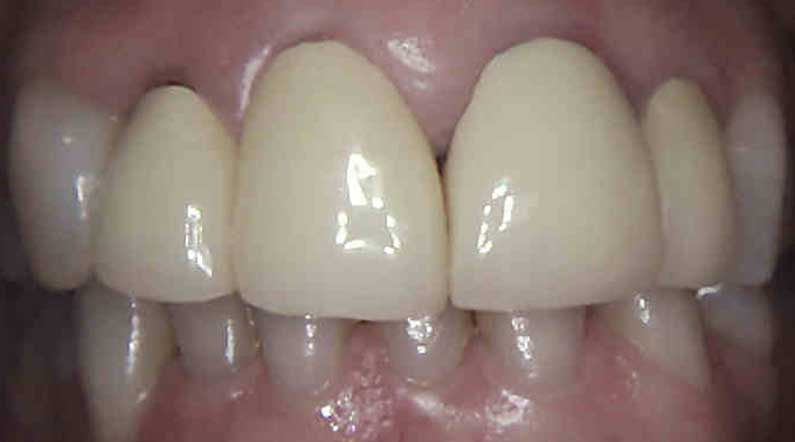 dental Crowns before replacement northern ireland
