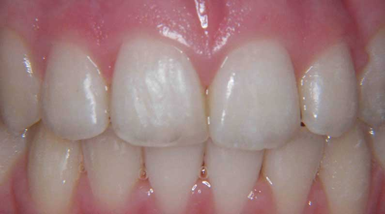 after orthodontic treatment even adult smiles can be transformed