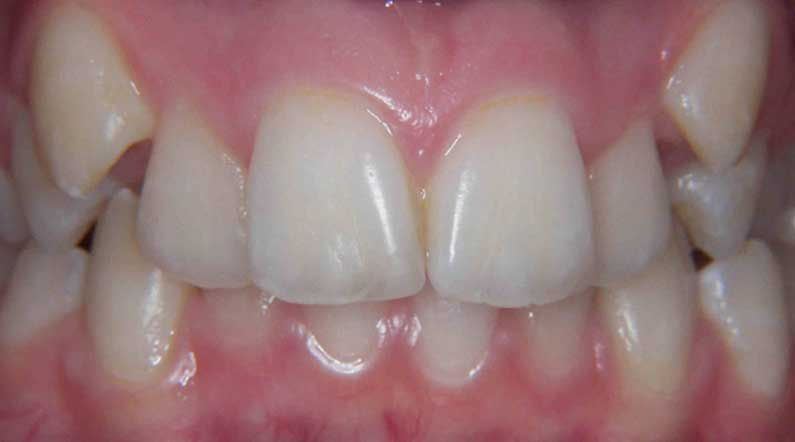 crooked teeth can be straightened at any age