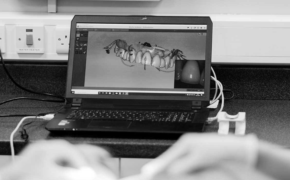 Computer screen showing real time image  of patient's tooth structure